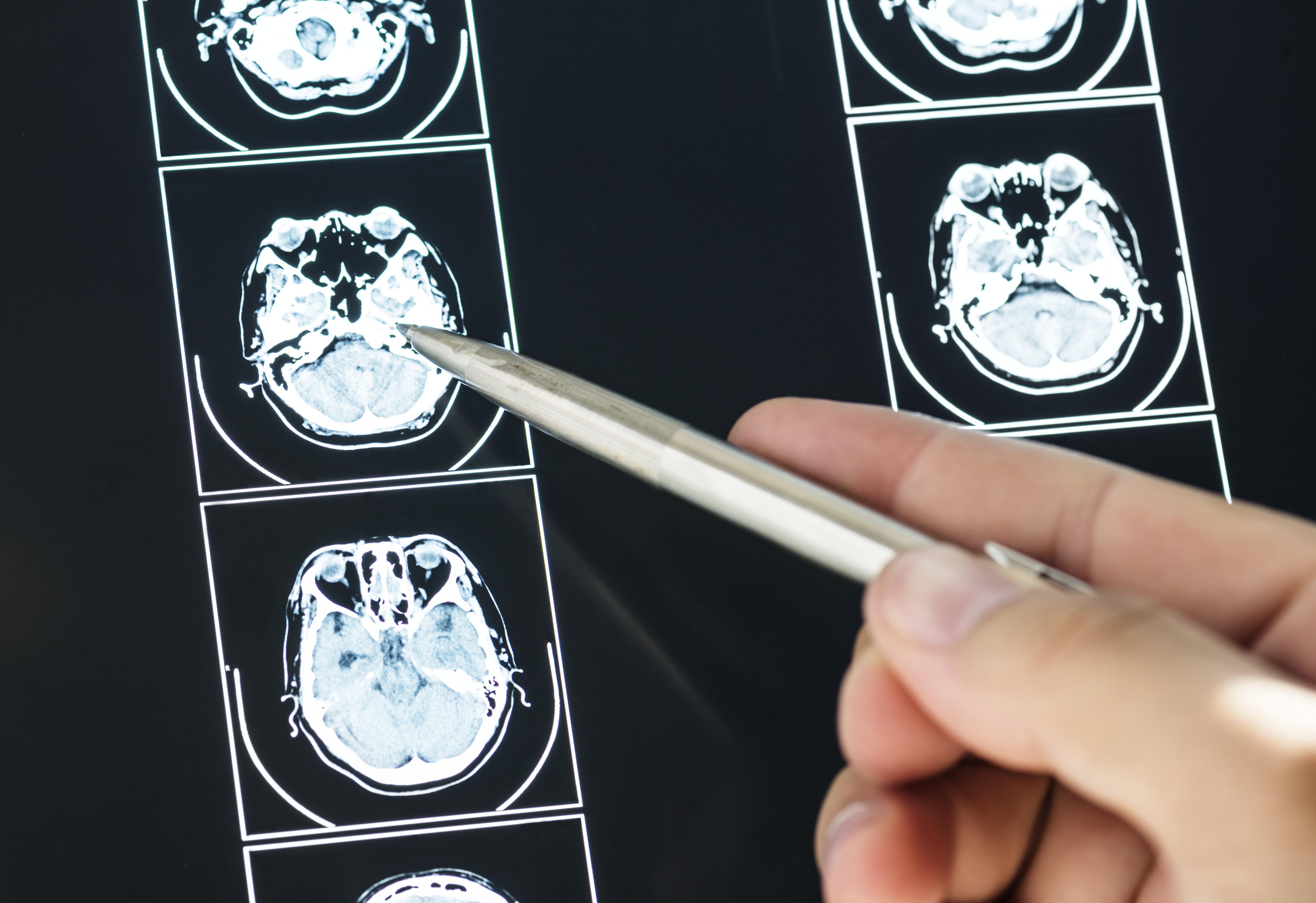 A atividade do cérebro mostra muito sobre possibilidade de compra